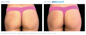 Emsculpt_PIC_Ba-card-female-buttock-058_EN100
