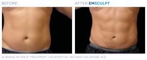 Emsculpt_PIC_Ba-card-male-abdomen-070_EN100