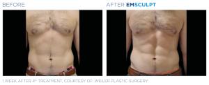 Emsculpt_PIC_Ba-card-male-abdomen-073_EN100